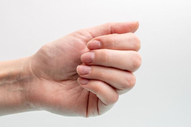 Крупный план кавказской женской руки с натуральными неполированными ногтями, заросшей кутикулой на белом фоне, вид сверху, копией пространства. концепция натуральных ногтей, сырые ногти