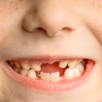 前歯を失った子供の顔のクローズアップ