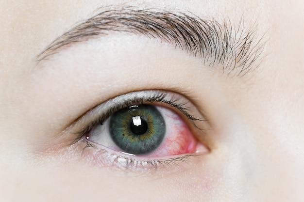 Закройте вверх налитого кровью красного глаза. вирусный блефарит, конъюнктивит, аденовирусы. раздраженный или зараженный глаз.