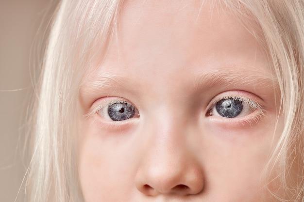 珍しい目、眉毛、まつ毛の色でアルビノの子供のクローズアップ