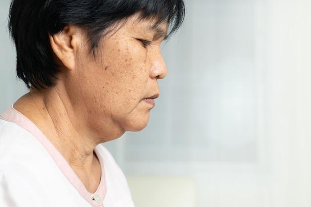しわのある皮膚の状態を持つアジアの高齢女性の顔のクローズアップ。側面図
