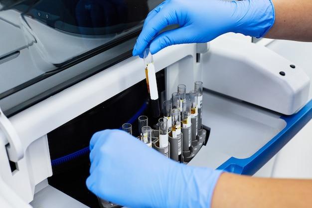실험실에서 의료 샘플 테스트 튜브를 분석하는 파란색 장갑에 생화학 자 팔의 근접