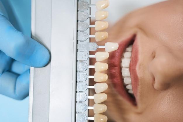 Крупным планом веселая женщина обращается к стоматологу для улучшения здоровья полости рта и красивой улыбки