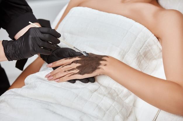 Крупный план косметолога, применяющего угольную маску на руке женщины в спа-салоне