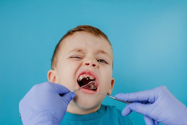 Крупным планом руки стоматолога с помощником в синих перчатках лечат зубы ребенку, лицо пациента закрыто