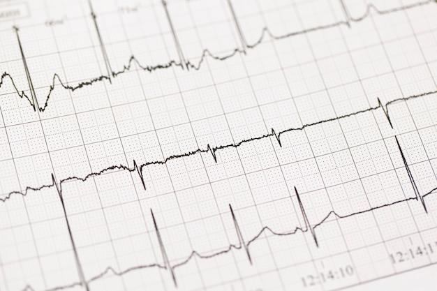 Ecg、心電図のクローズアップ。紙の上の健康な心の働き。