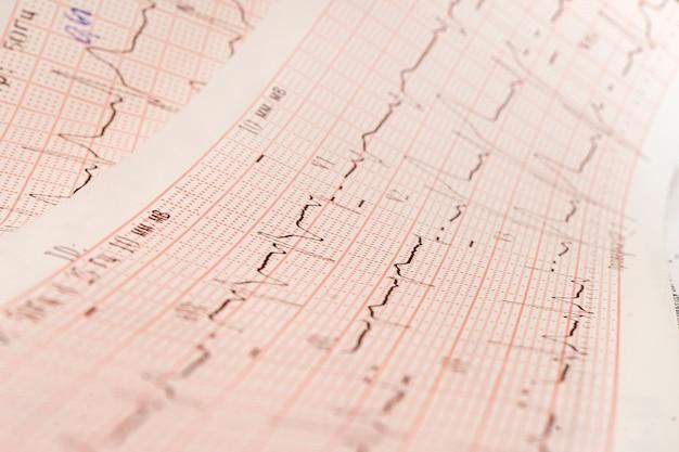 Крупным планом экг, электрокардиограмма. работа здорового сердца на бумаге.