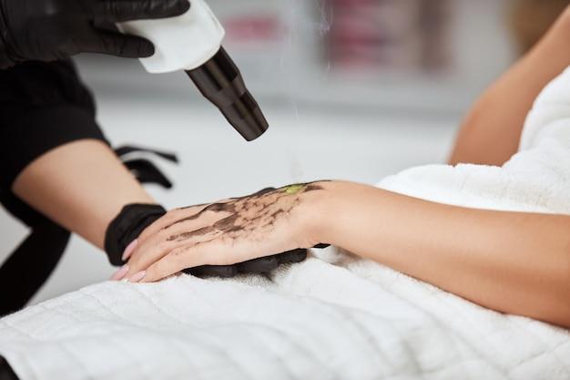Крупный план женской руки с угольной маской, получающей лазерную терапию в клинике красоты
