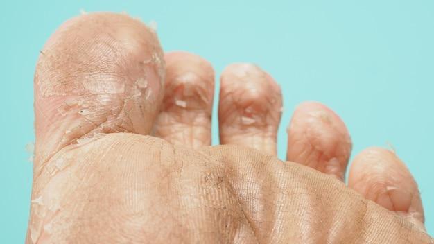 緑またはティファニーブルーの背景にある足のピーリングのクローズアップまたは古い角質を取り除きます。