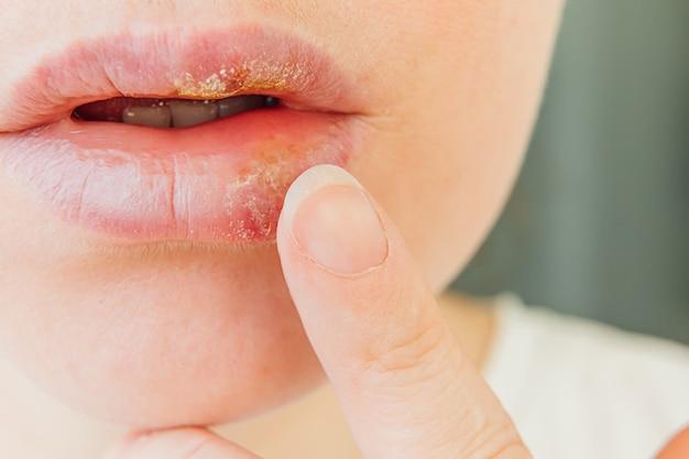 헤르페스의 영향을받는 소녀 입술 닫습니다. 헤르페스 감염 및 바이러스 치료.