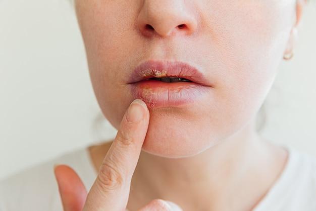 헤르페스 감염 및 바이러스 치료