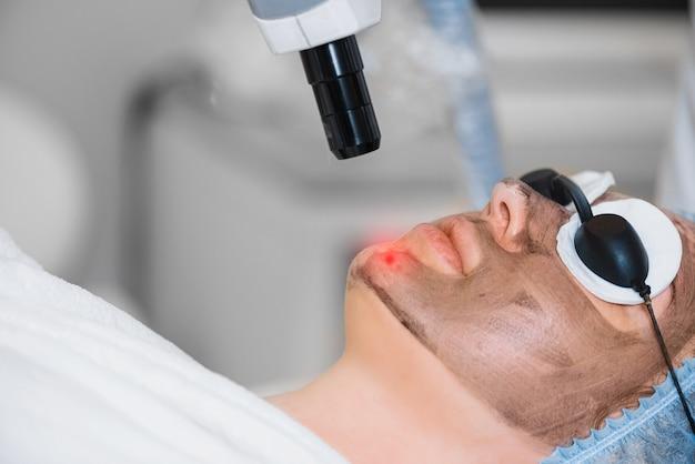Крупным планом - лазерный пилинг кожи лица. девушка делает процедуру пилинга углерода.