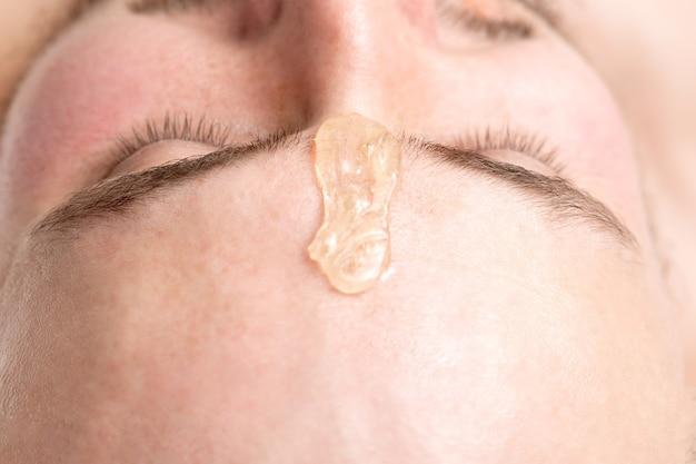 ビューティーサロンでワックスをかける前に、若い男の眉毛の間の液体ワックスのクローズアップ
