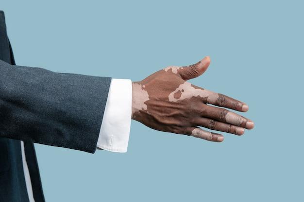青の背景に分離された白斑色素を持つ男性の手のクローズ アップ。スペシャルスキン