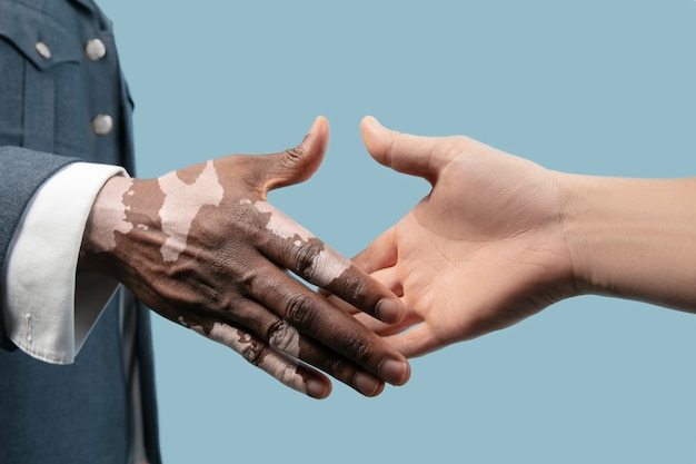 青い背景に分離された白斑色素で男性の手のクローズアップ。