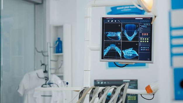 歯のx線画像が表示された医療用口腔病学ディスプレイのクローズアップ