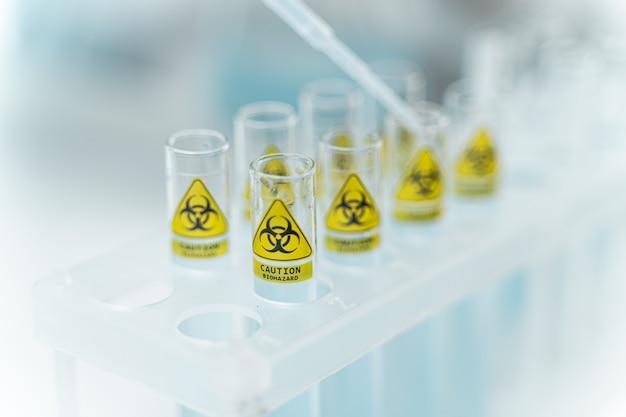 탁자 위에 있는 플라스틱 지지대, 현대 실험실의 화학 실험