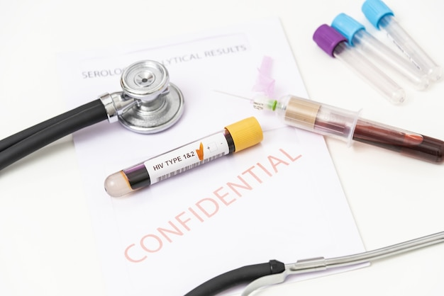Крупным планом - положительный образец крови из опечаток 1 и 2 vih.