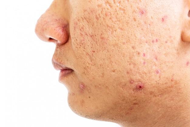頬の男性の色素沈着に深いニキビ跡がある問題のある皮膚の拡大図。