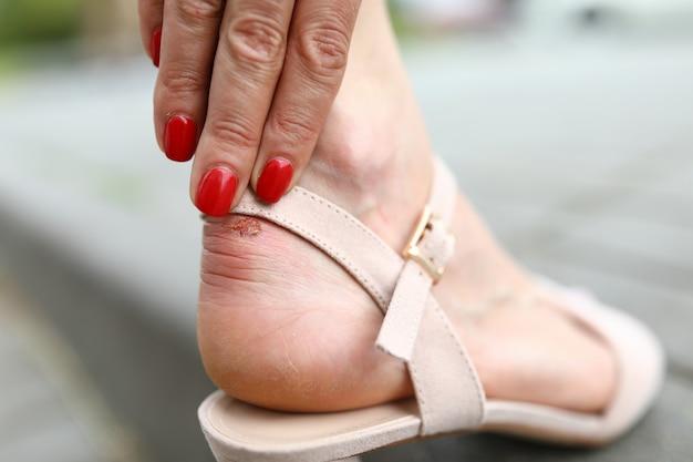 不快な靴を履いている女性のクローズアップ。足のカルスに触れる人。手に素敵な赤いマニキュア。ベージュのサンダルの女性。足の怪我。トラブルのコンセプト