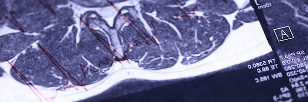 인체의 엑스레이 진단의 클로즈업. 환자의 자세한 정보가있는 skiagram. 자기 공명 영상. 현대 의학 및 과학 개념