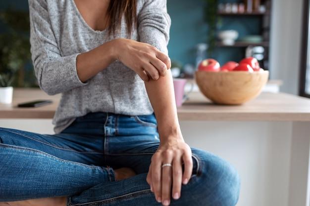 Крупным планом молодая женщина почесывает руку, сидя на стуле в домашней кухне.