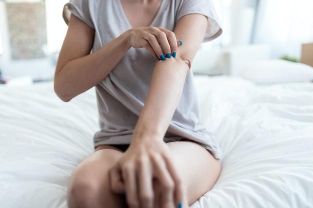 Закройте вверх молодой женщины, сидящей на кровати, почесывая руку. понятие псориаза.