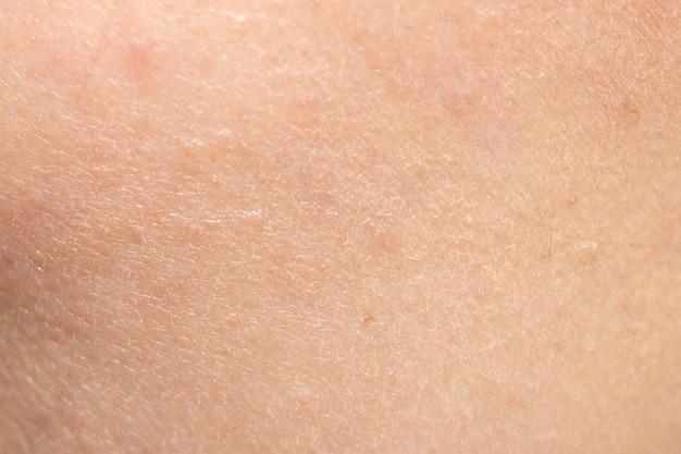 顔とスキンケアの概念のための乾燥した頬の肌の質感のクローズアップ