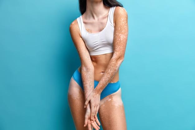 白斑の皮膚を持つスリムな女性にクローズアップ