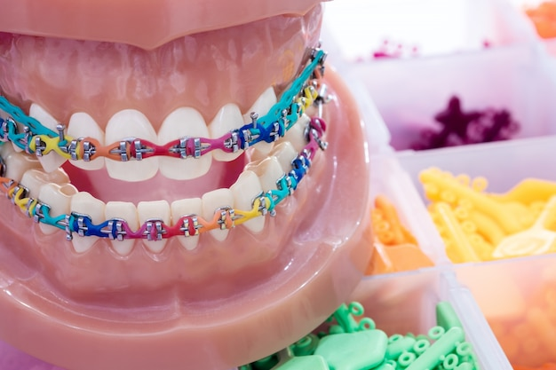 Close up  orthodontic model  - demonstration teeth model of varities of orthodontic bracket or brace
