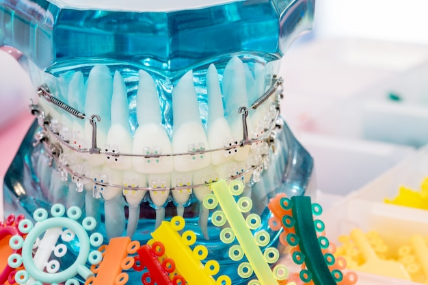 Close up orthodontic model