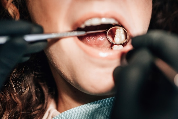 Close-up of patient at dentist checking teeth