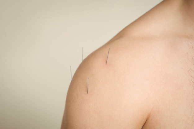 Close-up of a patient getting dry needling