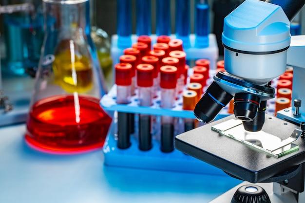 血液サンプルの試験管付き顕微鏡の写真をクローズアップ