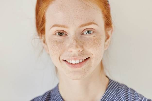 Close up portrait of beautiful young redhead model with different colored eyes and healthy clean skin with freckles smiling joyfully, showing her white teeth, posing indoors. heterochromia in human