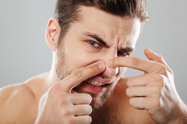 Close up portrait of a man squeezing pimple on his face