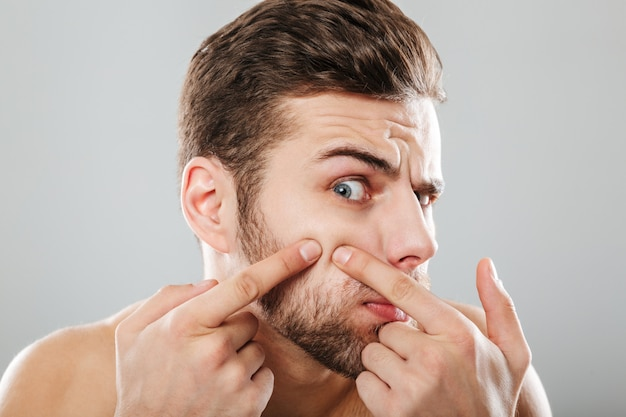 Close up portrait of a man squeezing pimples