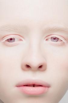 스튜디오 배경에 격리된 아름다운 알비노 여성의 초상화를 닫습니다.
