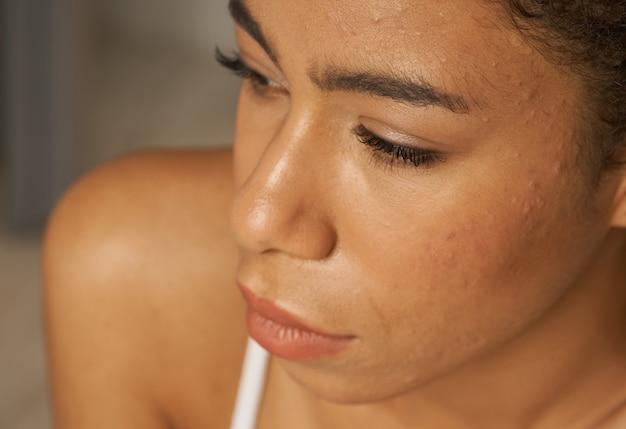 Крупным планом портрет молодой женщины смешанной расы с проблемной кожей прыщей