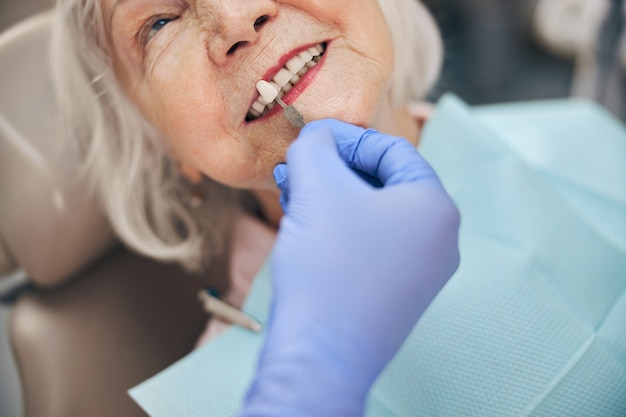 Close up portrait of professional doctor checking whiteness of patient teeth with palette in the office dentistry