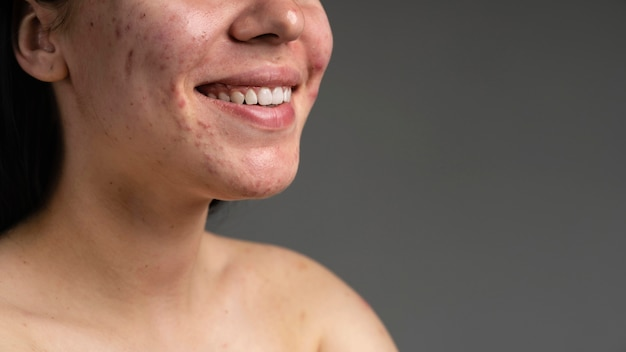 Close-up portrait of young woman with acne