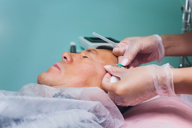 Close-up of procedure for face lifting pdo suture operation, face lifting surgery. innovative technique of new thread lift, novathreads and silhouette instalift men's bags under the eyes.