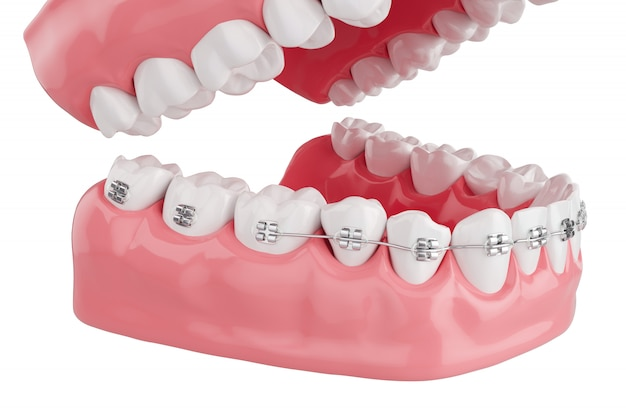 Close up process health teeth with brace. selective focus. 3d render.