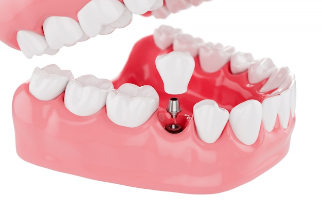 Close up process implants teeth health care. selective focus. 3d render.