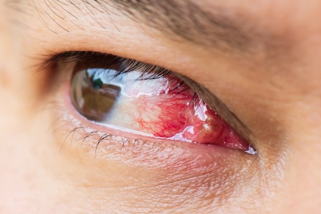 Close up of the pterygium during eye examination. healthcare concept.