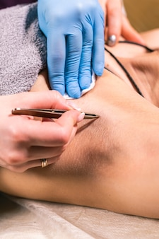 Close-up of removing armpit hair with tweezers. female depilation. cosmetology and beauty shop