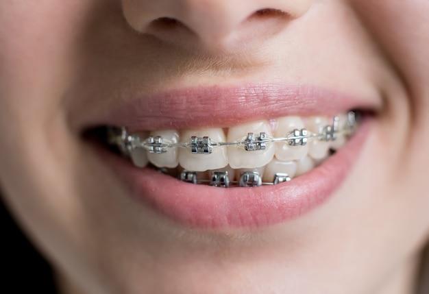 Крупным планом зубы с брекетами. улыбающиеся пациентки с металлическими скобками в стоматологическом кабинете. ортодонтическое лечение