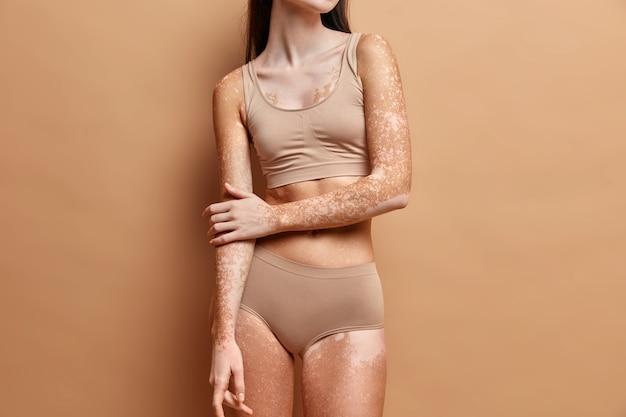 Primo piano su una donna magra con la pelle della vitiligine