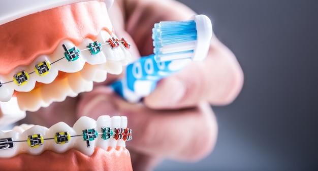 Брекеты для зубов и зубная щетка крупным планом на примере чистки зубов.