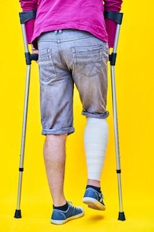 보라색 티셔츠 반바지와 목발, 붕대 다리가있는 뒤에서 남자의 다리를 클로즈업합니다.